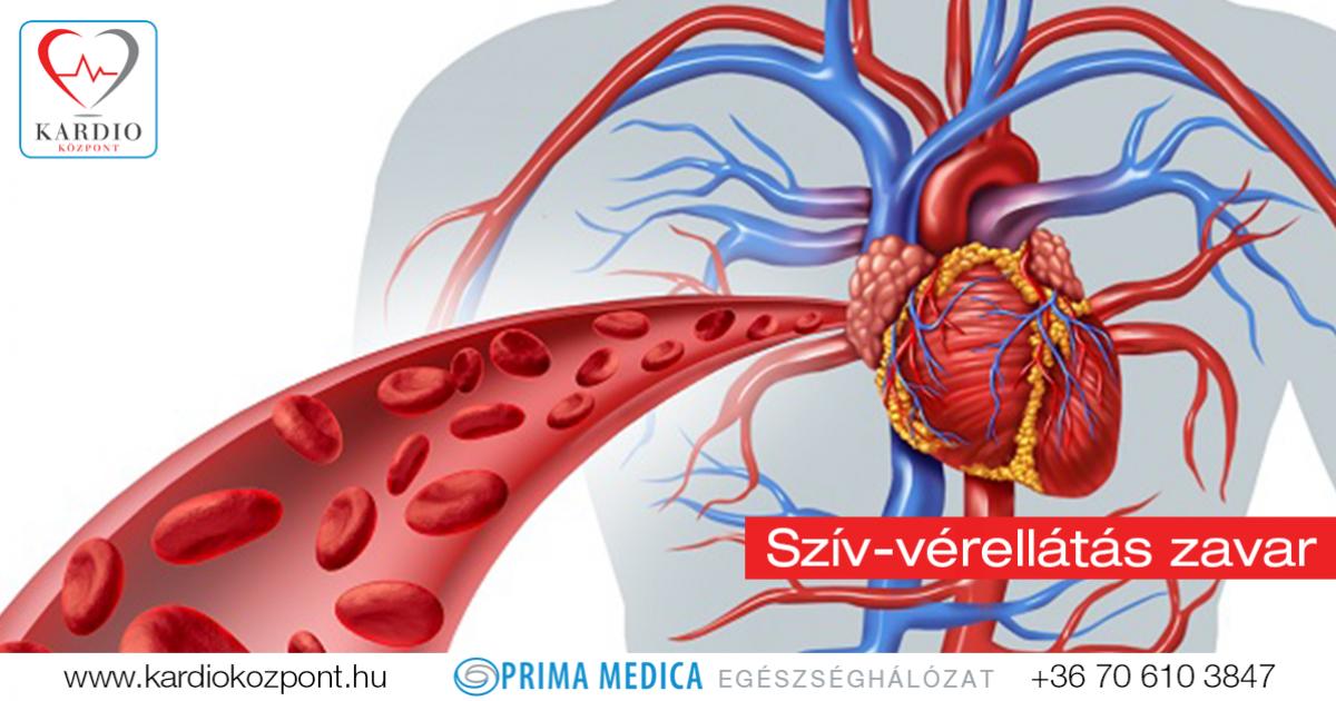 nem szívkoszorúér tünetek hogyan lehet eltávolítani a férgeket tabletták segítségével