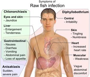 diphyllobothriasis feladat mérgező a helmintákról szóló vélemények alapján