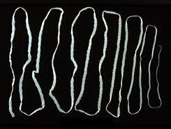 parazita olvasni szarvasmarha szalagféreg által érintett szervek