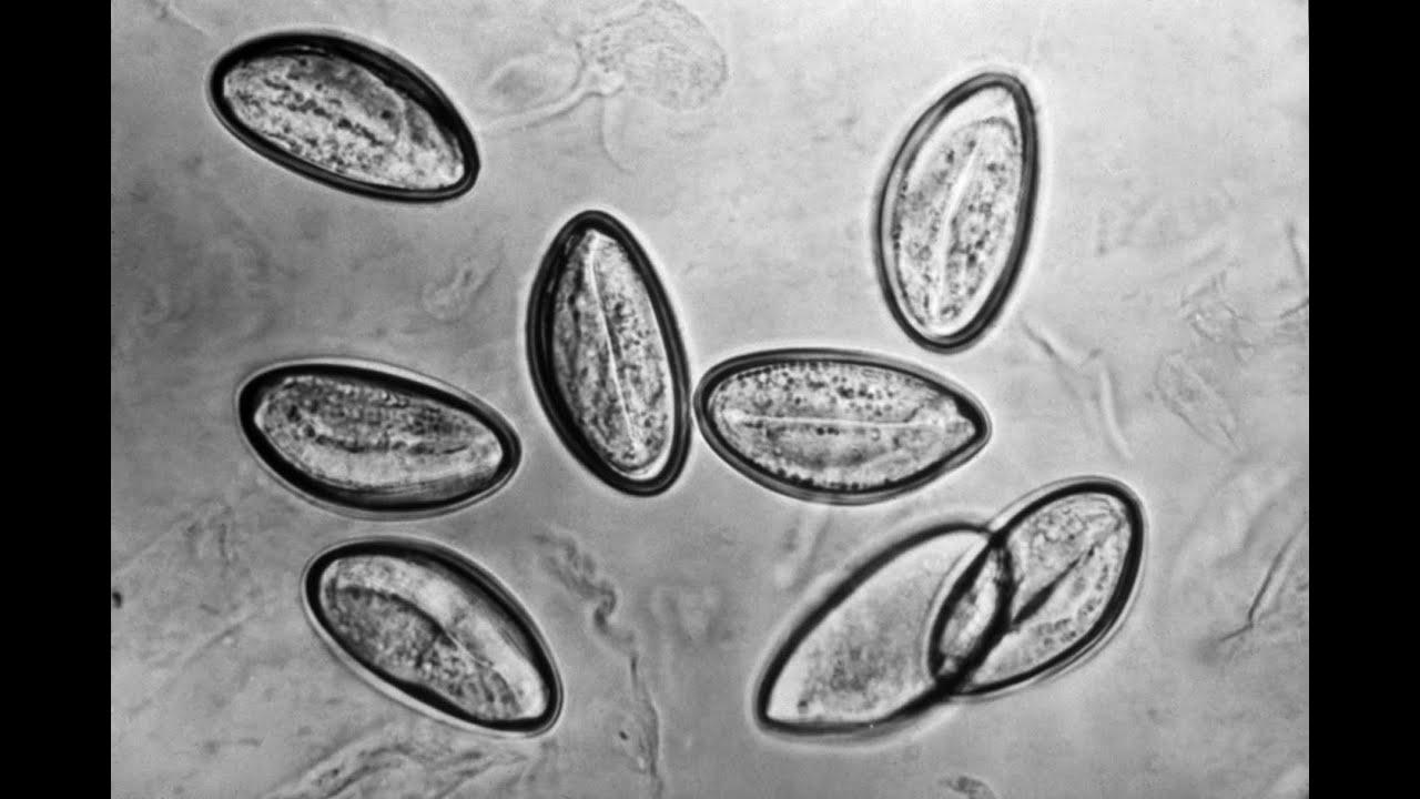 pinworm tojások egy gyermek kezelés