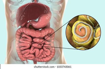 ahogy a pinworms feltárja paraziták gyógyszerei felnőtteknél gyógyszerek