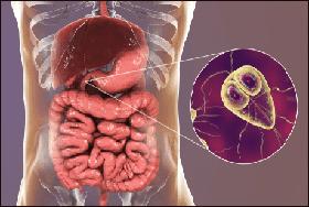giardia ayurvedic treatment aktív méregtelenítés