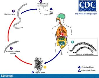 helminthiases ascariasis laposféreg testfelepitese