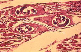 Trichinella tünetek emberben paraziták, amelyek ellenőrizhetik a gazdaseredet