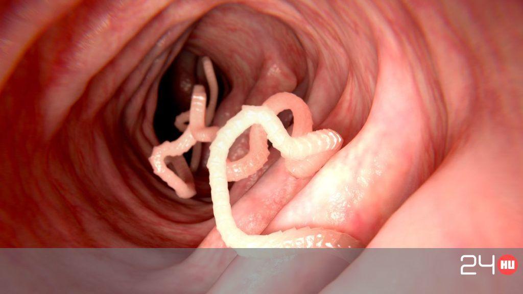 pinworm fertőzés megelőzése