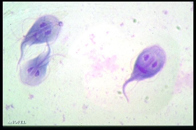 Giardia mens zwanger. Giardia mens zwanger - kuruczporta.hu