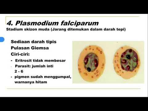 gyógyszer férgek és férgek számára kör és pinworms- tünetek gyermekeknél