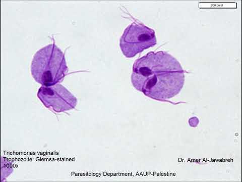 choleretic giardiasisban