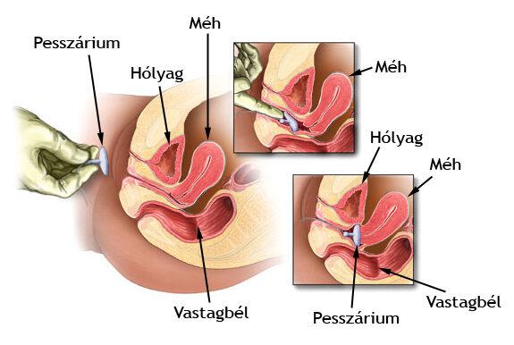 húgycső kenet férfiak áron ankilostomiasis klinikai útmutatások