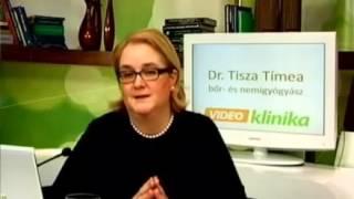 Alopecia férgek kezelése - bestgoldens.hu