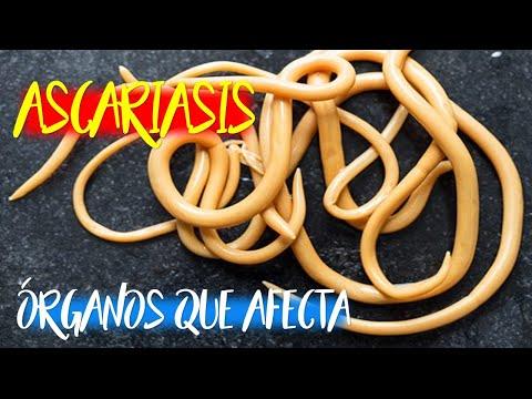 Ascariasis Laika Liker- től ascaris orvoslás