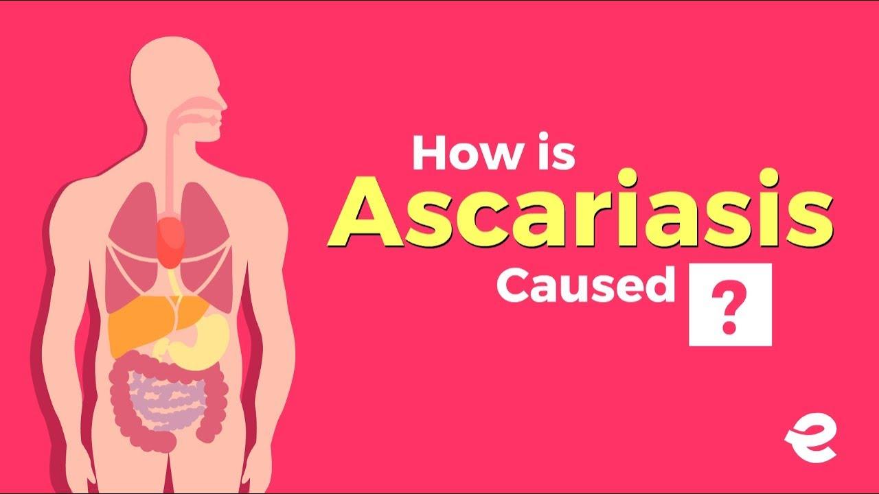 aszcariasis youtube szalag helminták gyógyszer