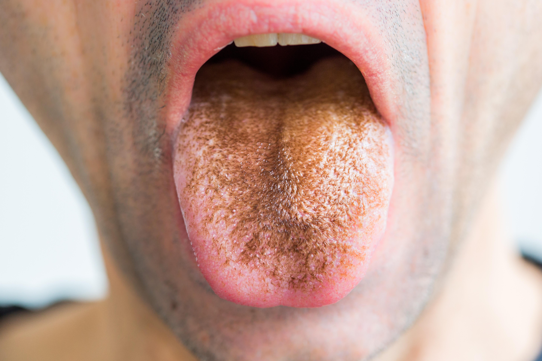 sárga nyelv és rossz lehelet