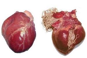 emberi szív férgek kezelése