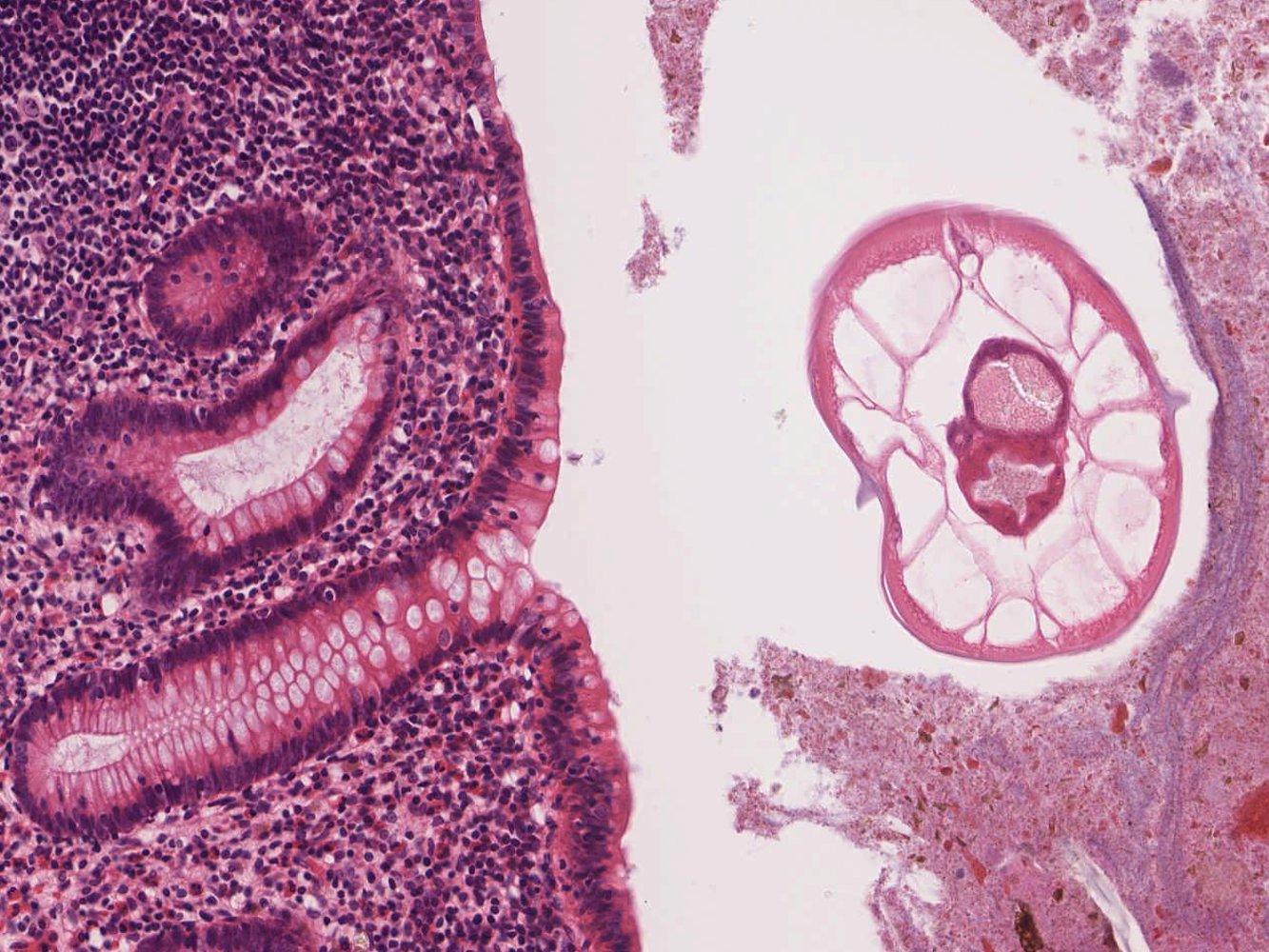 a helminthiasis- t kezelik bélféreg bőrtünetei