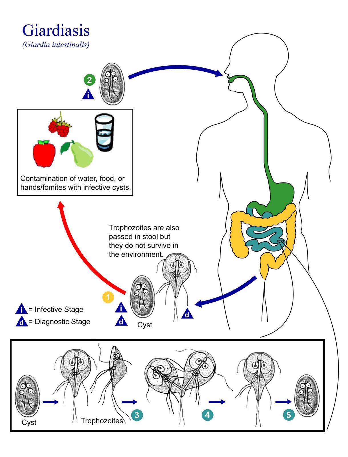 Giardiasis fájdalom a jobb hypochondriumban. Fájdalom az epehólyagban - Giardia