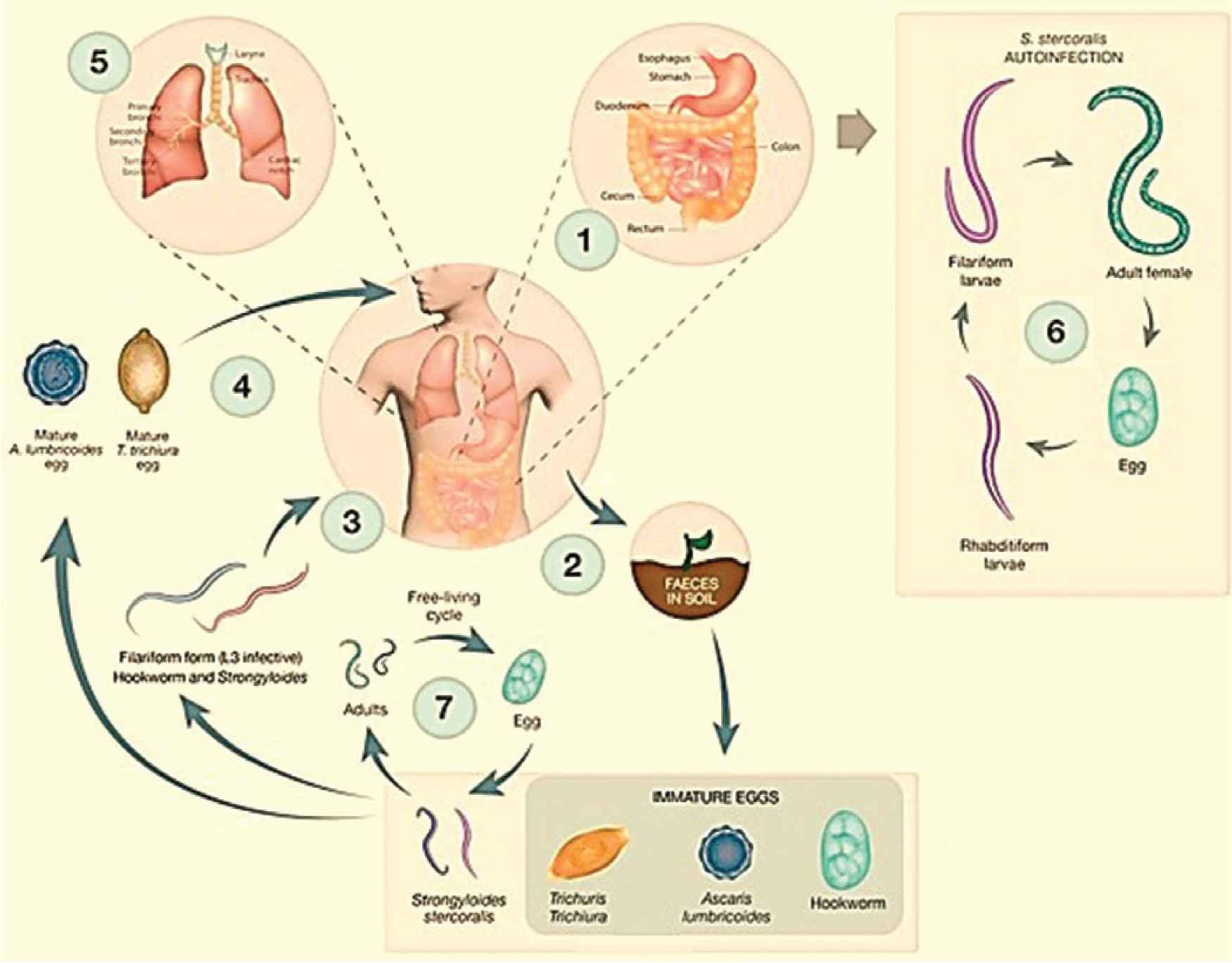 helminthiases ascariasis parazita mentes