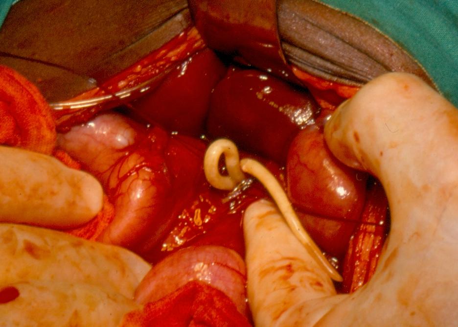 helminthiases ascariasis készítmények a belek megtisztítására férgektől
