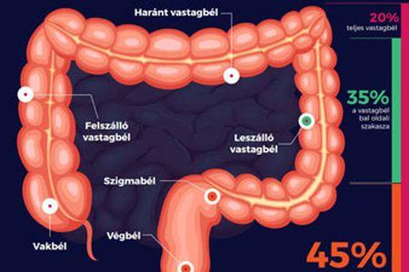 pinworm vastagbél
