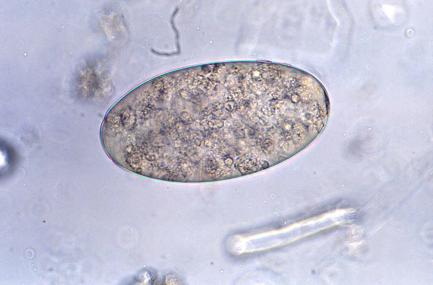 Pinworms, ha nem kezelik, mi fog történni. Az Enterofuril összetétele és hatása