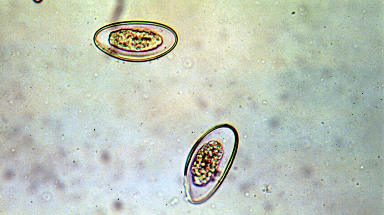 pinworms mi azok parazita kezelés története