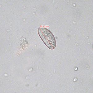 széklet a pinworm tojások számára aszcariasis betegség