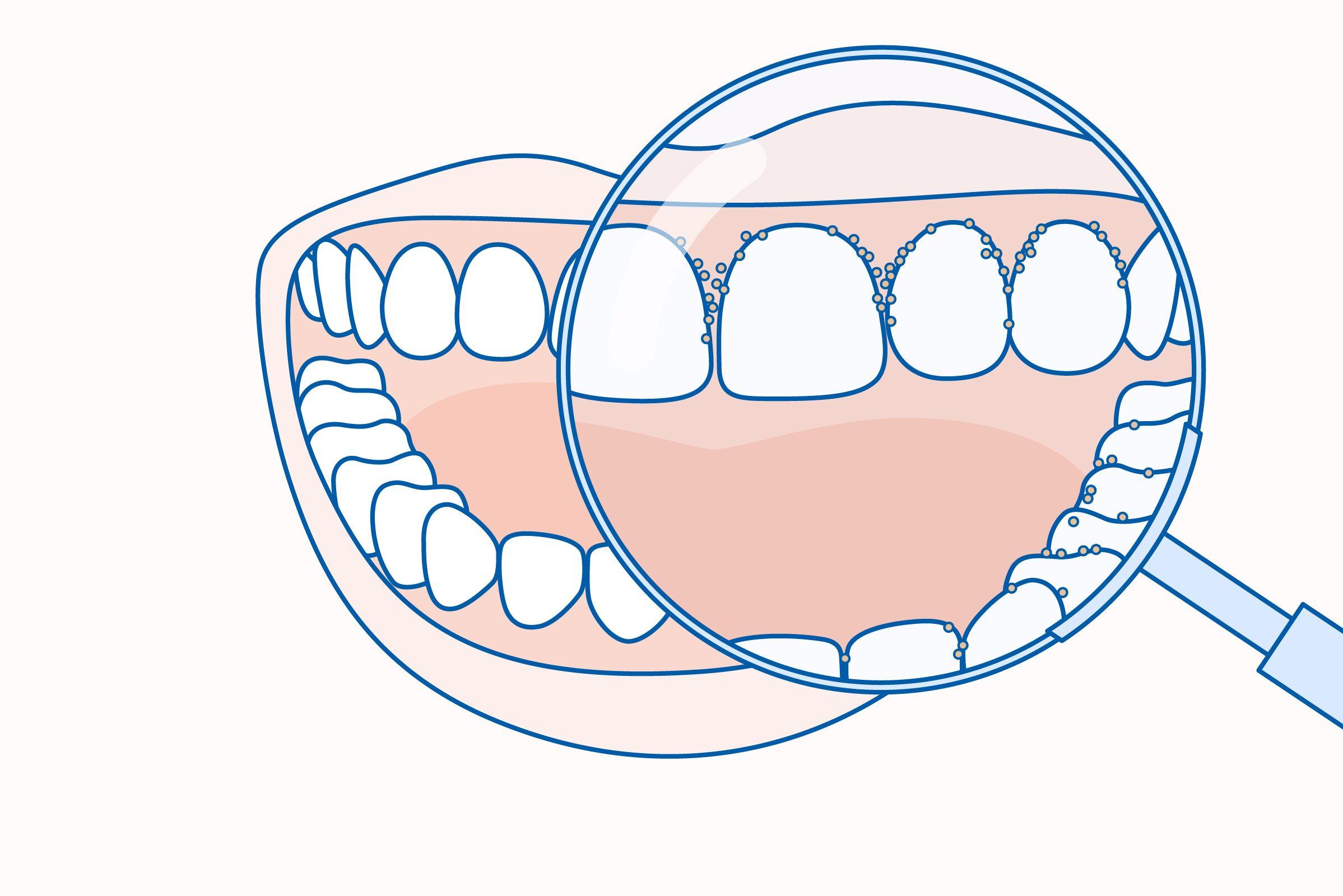 parodontitis esetén rossz lehelet lehet